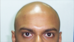 medium_tonsure.png