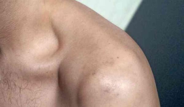 épaule tatou